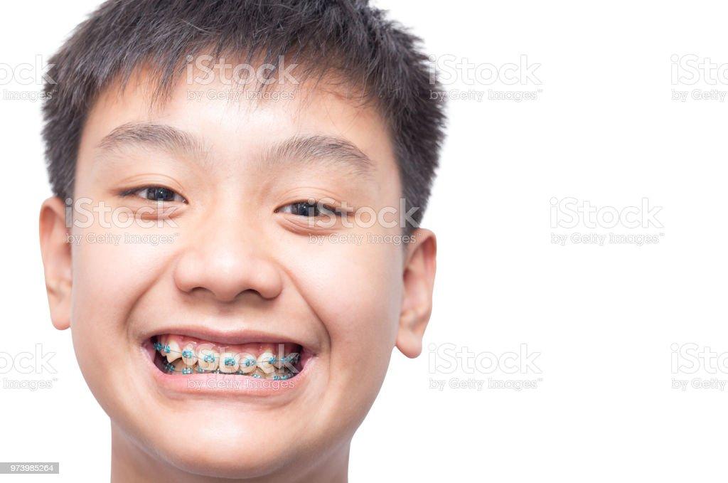 18003efab Saudável menino sorrindo mostrar sua cinta de dentes no fundo isolado. foto  royalty-free