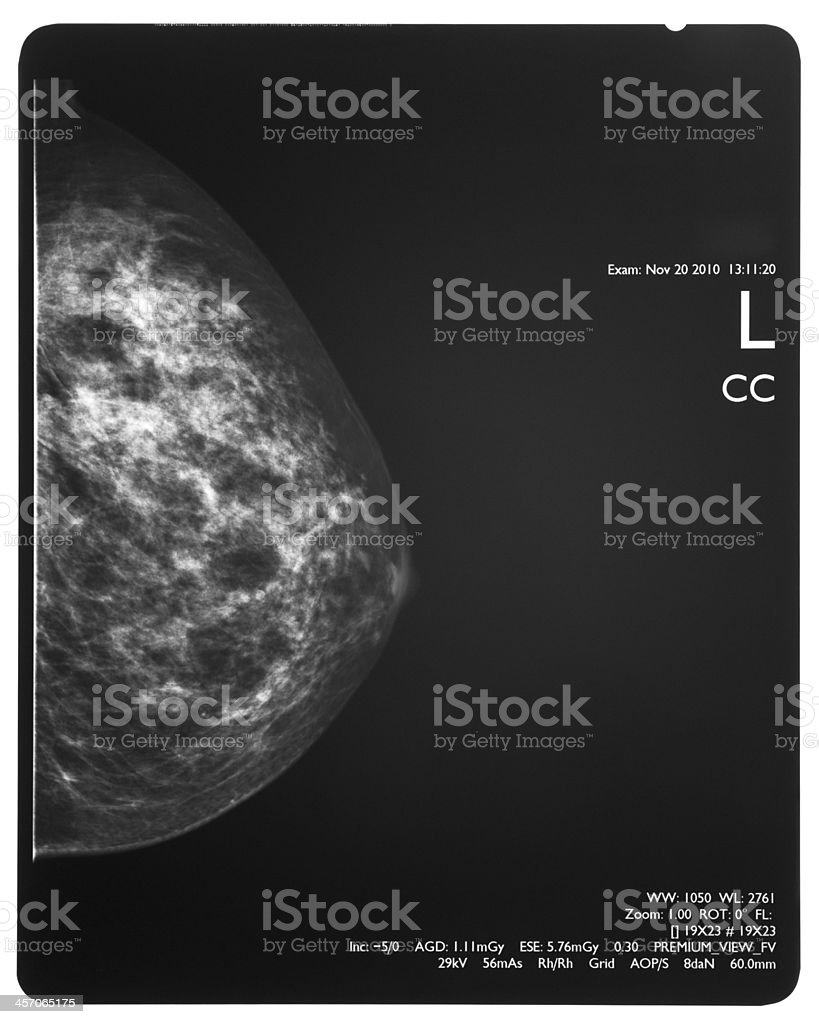 Healthy breast scan X-ray plate. stock photo