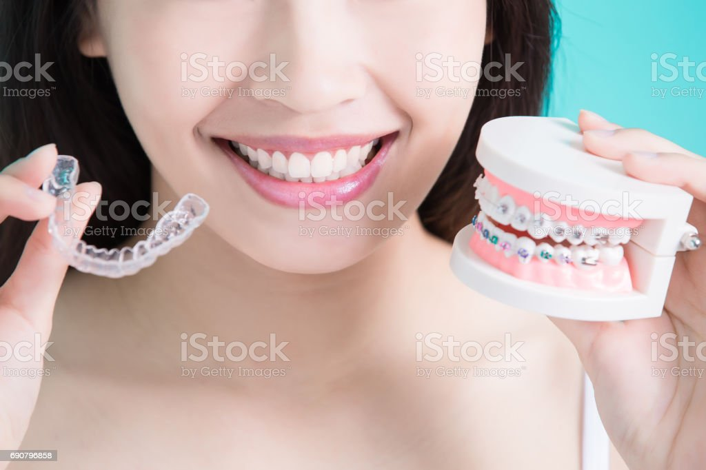 healthy dental concept woman choicce different brace on green background Adult Stock Photo