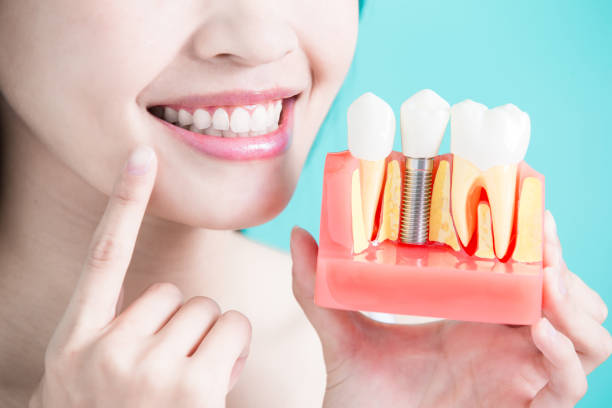 healthy dental concept - dental implants stock photos and pictures