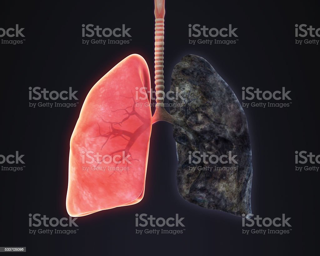 Healthy Lung and Smokers Lung Illustration stock photo