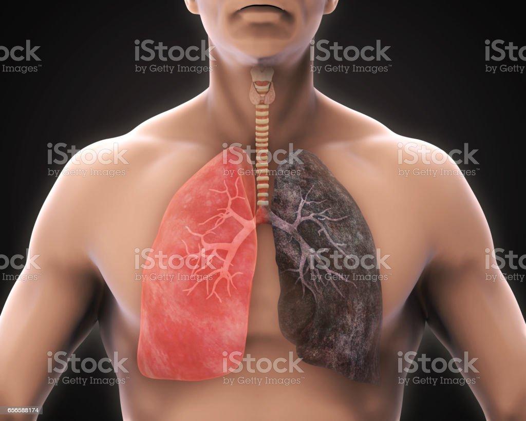 Gesunde Lunge Und Raucherlunge Stock-Fotografie und mehr Bilder von ...