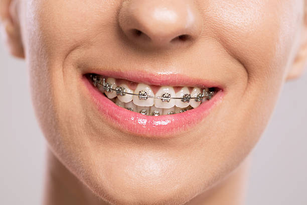 healthy smile with braces - brace stock pictures, royalty-free photos & images