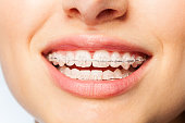 Close-up picture of healthy smile woman with clear brackets