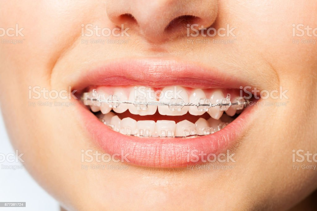 Healthy smile woman with clear brackets stock photo
