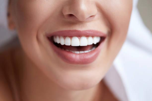 sonrisa blanca saludable de cerca. mujer de belleza con labios, dientes y sonrisa perfecta. hermosa chica de modelo con una piel perfecta. dientes que blanquean. - dentista fotografías e imágenes de stock