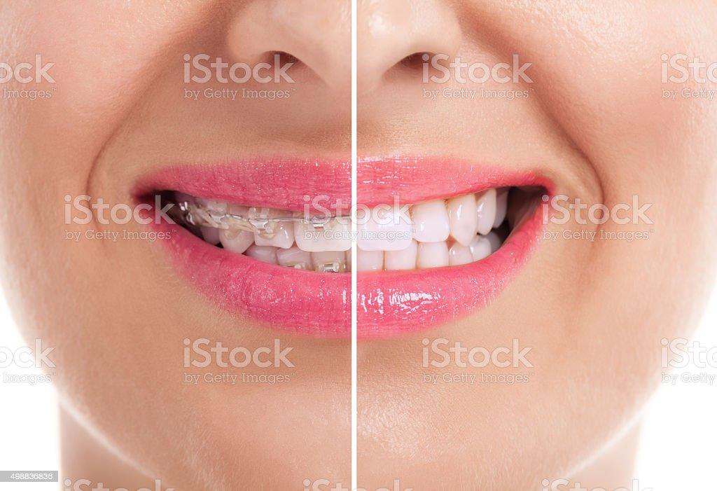 b705a31d4 Foto de Mulher Dentes Saudáveis e mais fotos de stock de Aberto - iStock