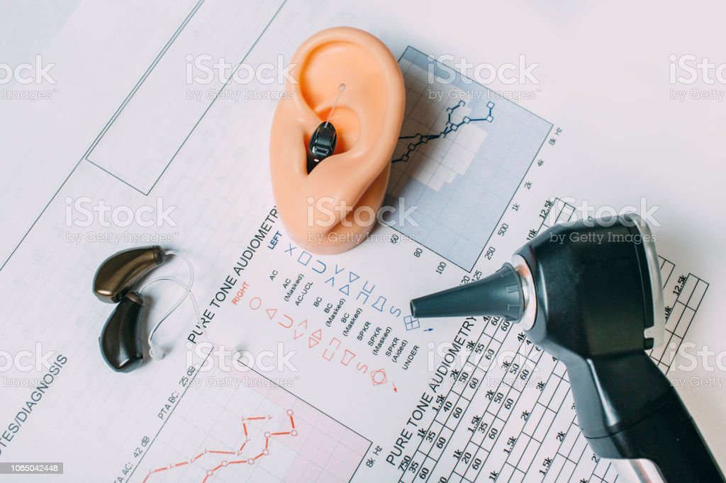 Hearing exam result - audiogram and hearing aids on the table stock photo