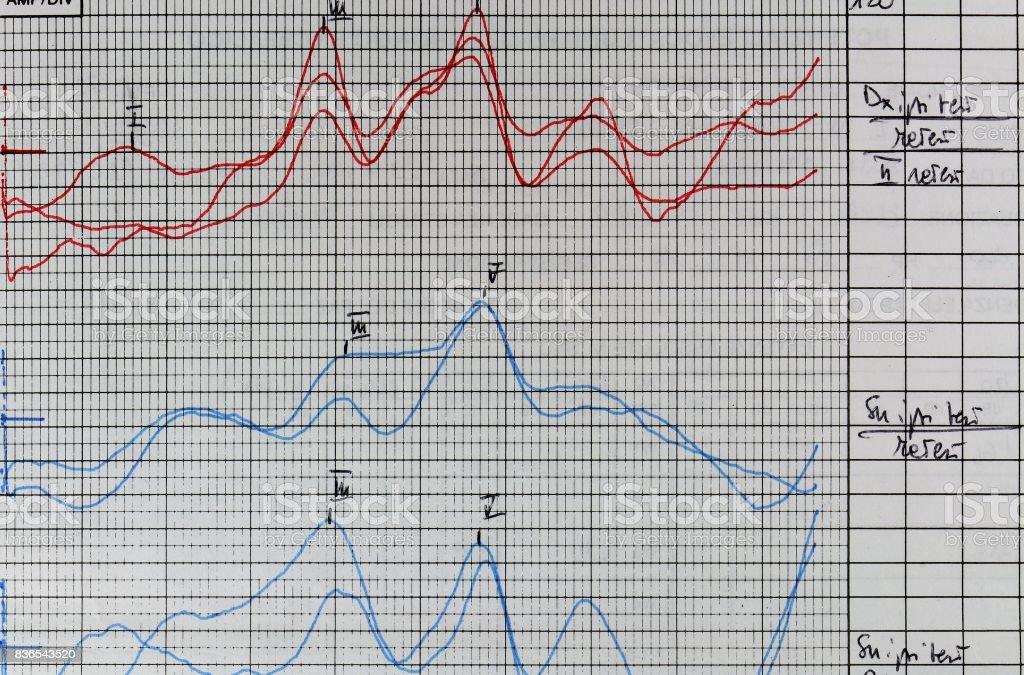 Hearing examination report. Tinnitus problem analysis. stock photo