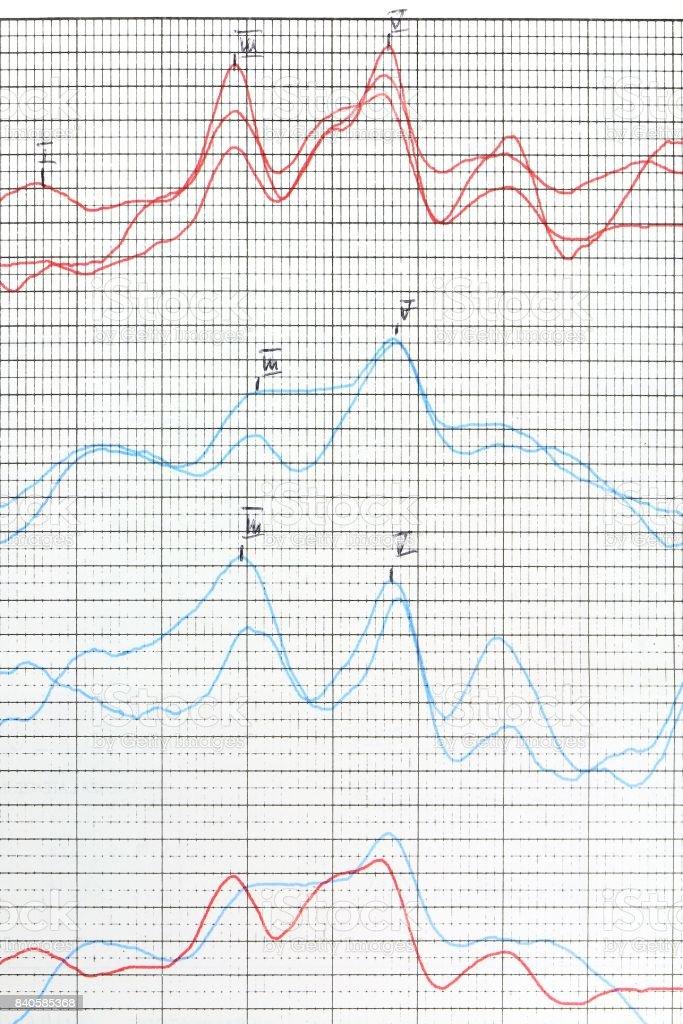 Hearing examination report. Tinnitus problem analysis.it stock photo
