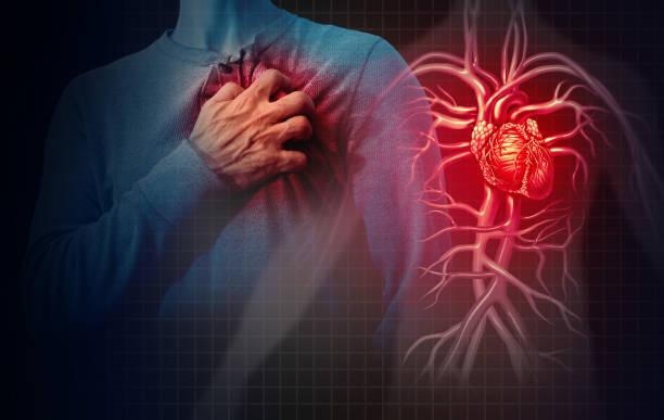 Heart Attack Concept stock photo