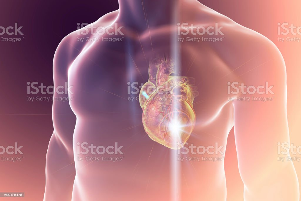 Heart attack, coneptual illustration stock photo