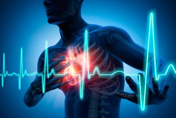 Ilustración conceptual de ataque cardíaco 3d - foto de stock