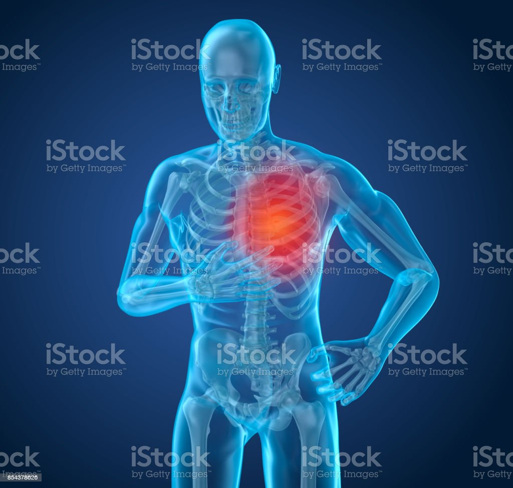 Heart Attack, man suffering from heart pain. 3D illustration stock photo