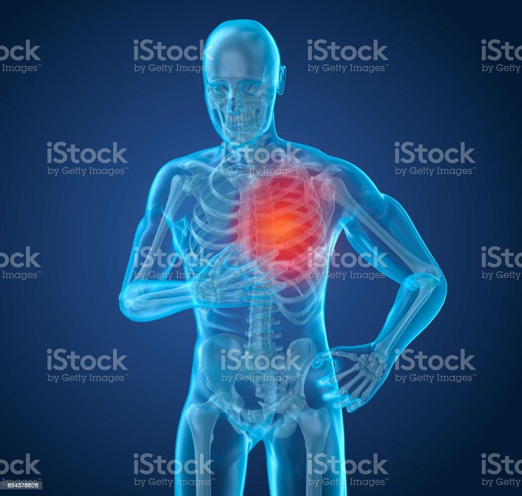 Ataque cardíaco, homem que sofre de dor no coração. Ilustração 3D - foto de acervo