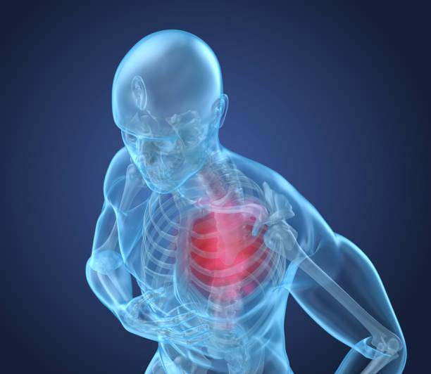 hjärtattack, man lider av smärtor i hjärtat. 3d illustration - spetsig vinkel bildbanksfoton och bilder