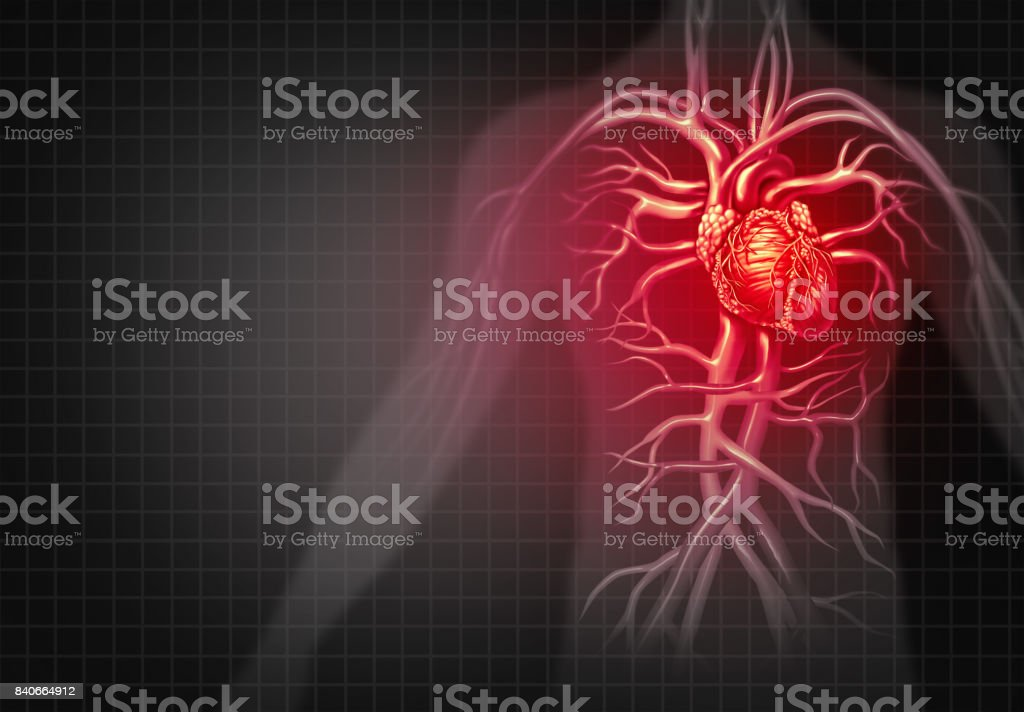 Heart Attack Stock Photo & More Pictures of Anatomy | iStock