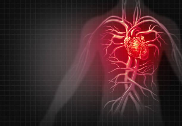 Heart Attack Heart attack and chest pain medical cardiovascular disease as an illness of a human circulation organ in a 3D illustration style. chest torso stock pictures, royalty-free photos & images