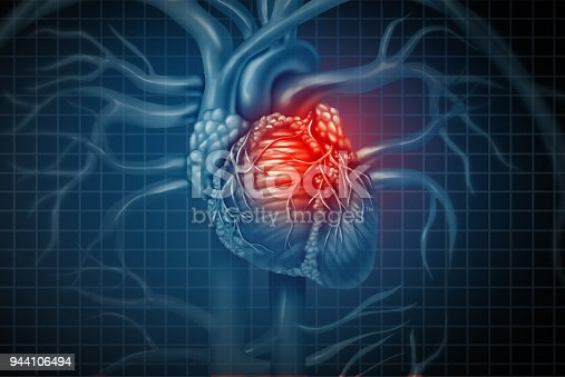 Heart attack pain as a human cardiovascular organ with a painful cardiac inflamation with 3D illustration elements.