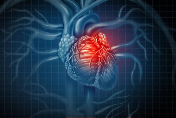 Ataque cardíaco - foto de acervo