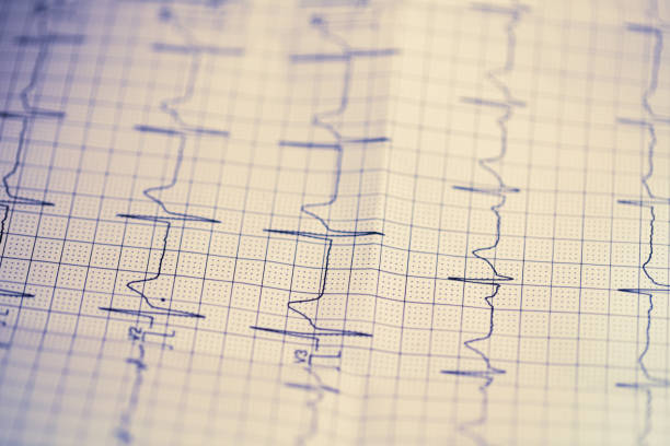 heart Electrocardiogram on paper stock photo