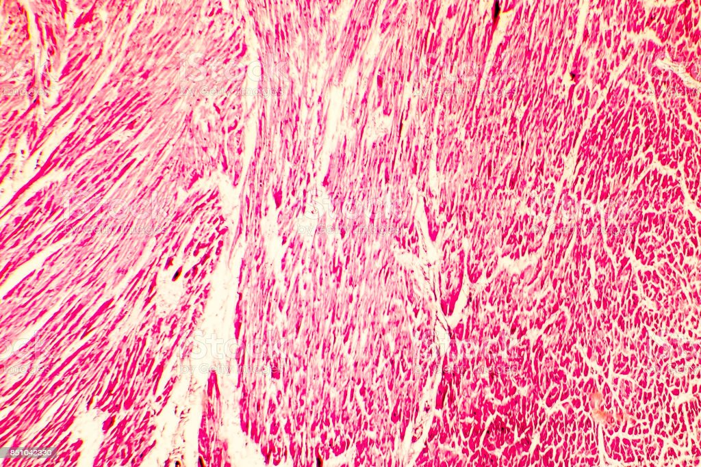 Heart hypertrophy photomicrograph stock photo
