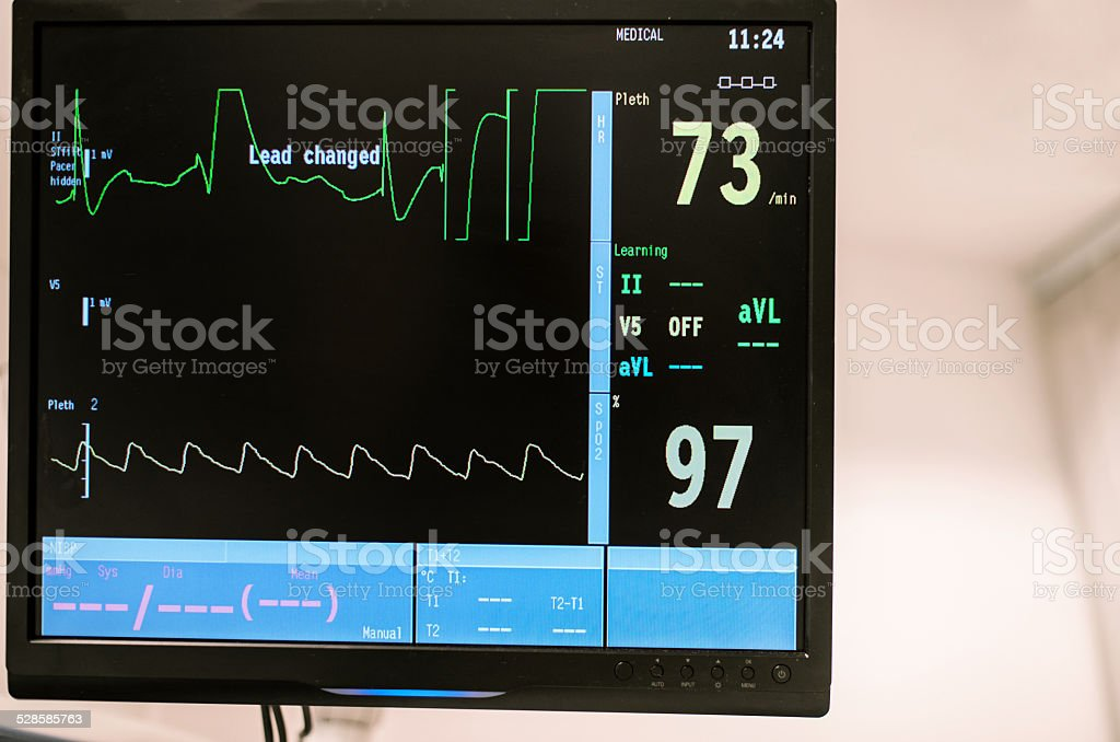 Heart rate monitor at surgery room in hospital emergency, Israel stock photo