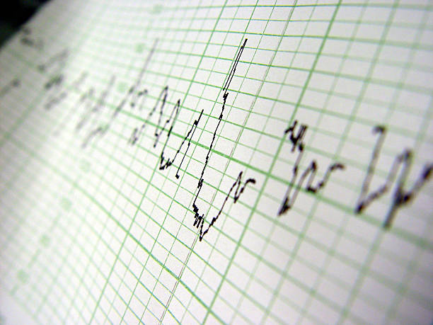 Heart rate on medical print out stock photo