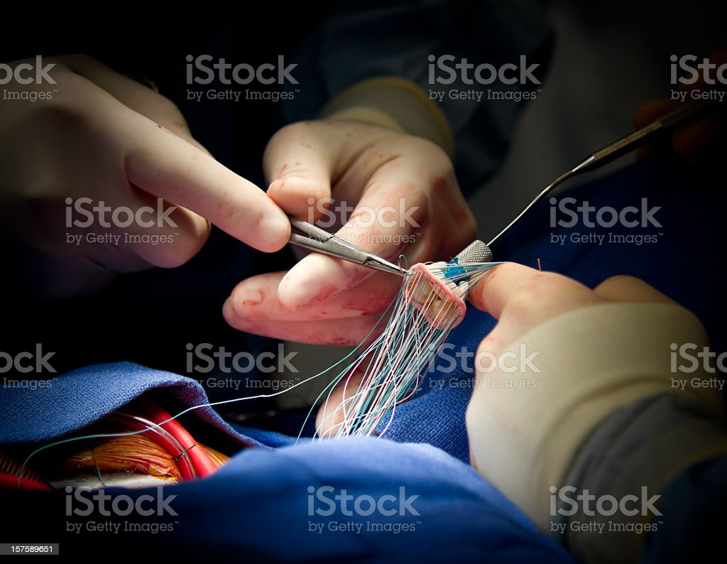 Heart Surgery Aortic Valve Replacement royalty-free stock photo
