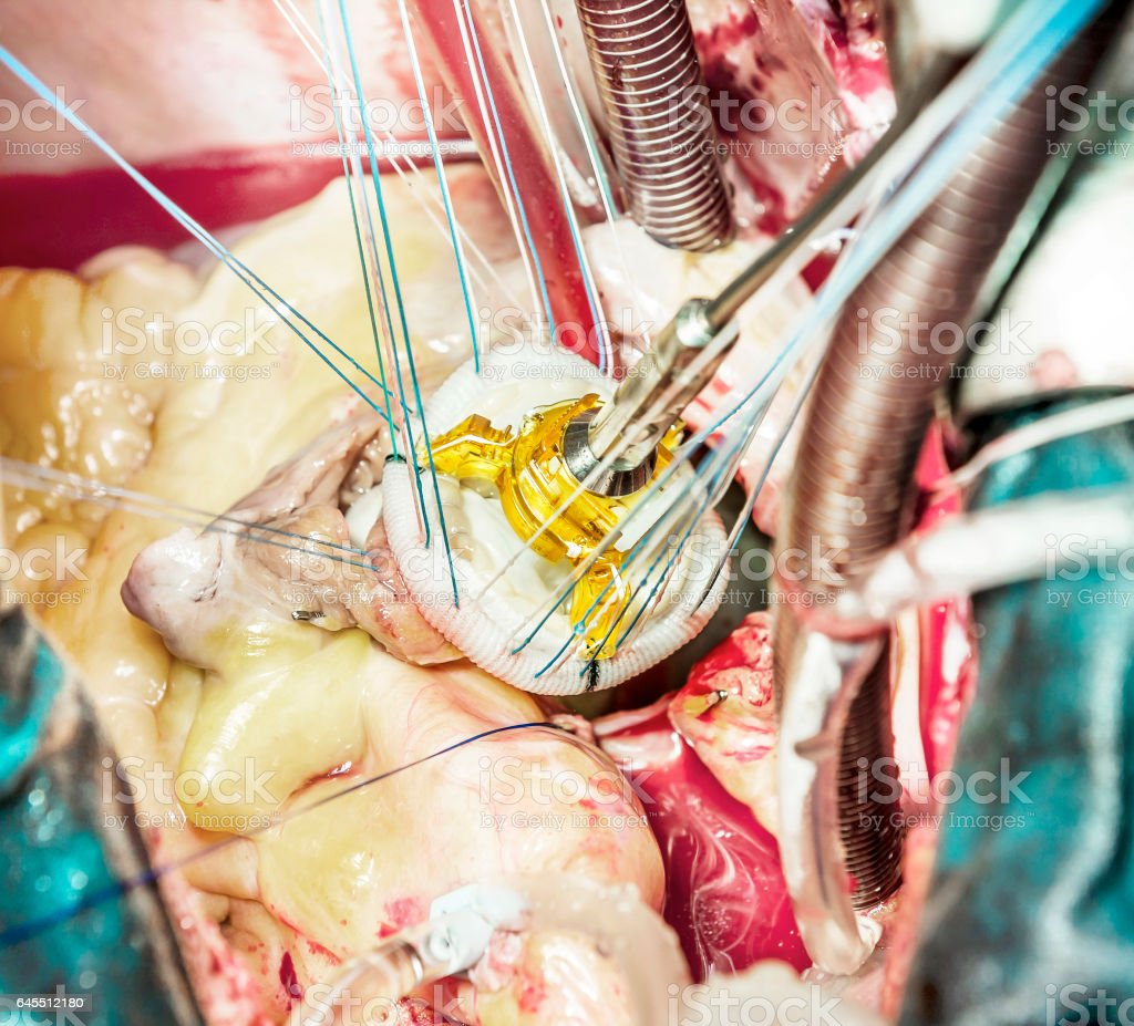 Heart valve biological prosthesis stock photo