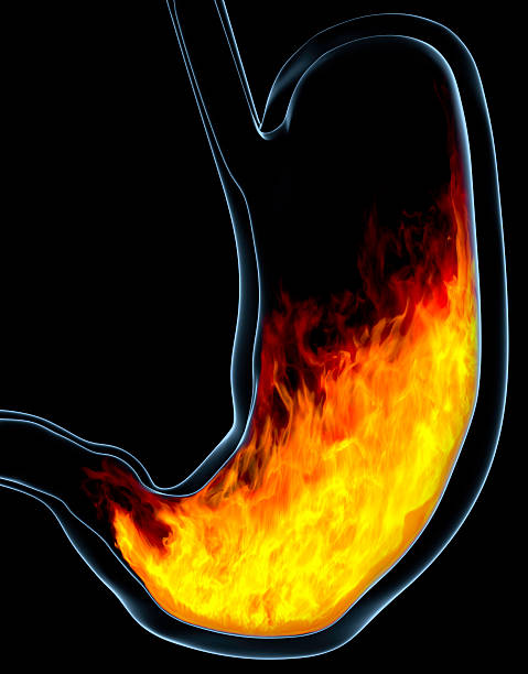 Heartburn/indigestion stock photo