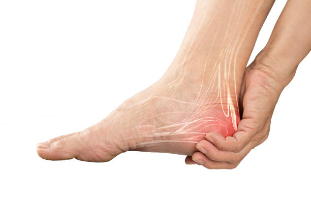 heel muscle pain - foto stock