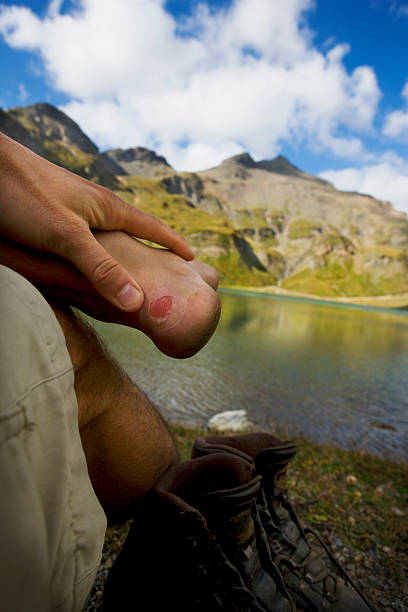 heel of young man with blister in scenic mountain landscape stock photo