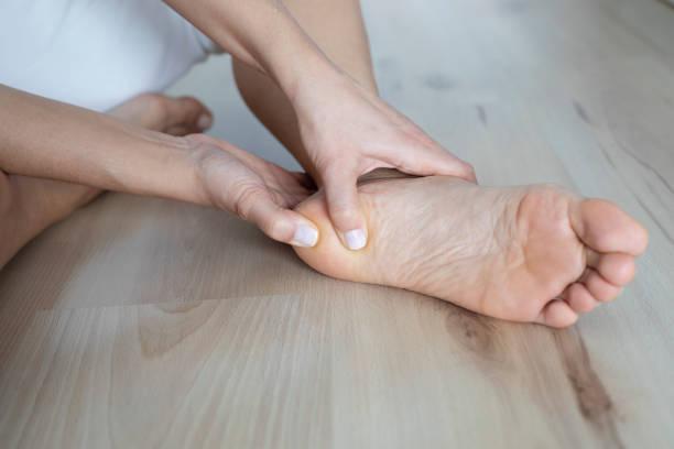 heel pain - callo foto e immagini stock