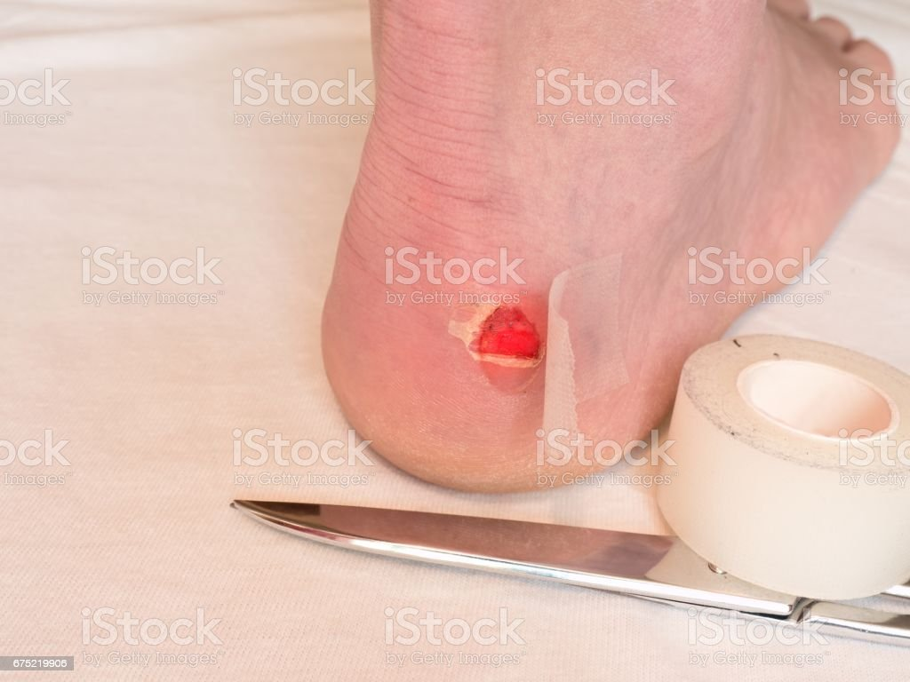 Heel wound with bandage, scissors ready. Craced terrible blister on human heel. royalty-free stock photo