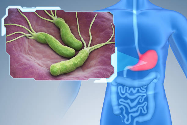 Helicobacter Pylori bacteria Helicobacter Pylori is a Gram-negative, microaerophilic bacterium found in the stomach. 3D illustration high scale magnification stock pictures, royalty-free photos & images