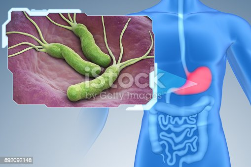 643 Helicobacter Pylori Stock Photos Pictures Royalty Free Images Istock