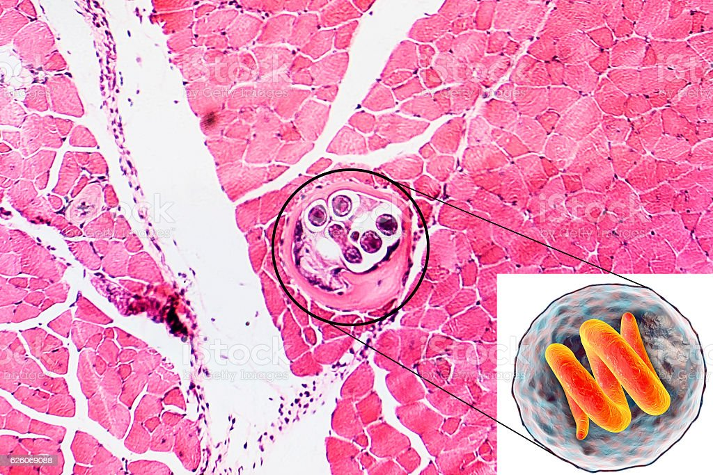 Helminth Trichinella spiralis stock photo