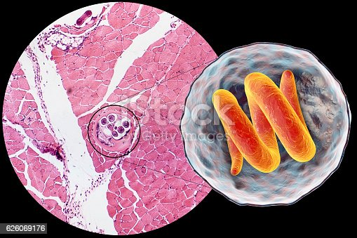 3D illustration and micrograph, transverse section, of cyst in muscle containing helminth Trichinella spiralis, nematode larval cyst in muscle tissue, transmitted by ingestion of undercooked meat