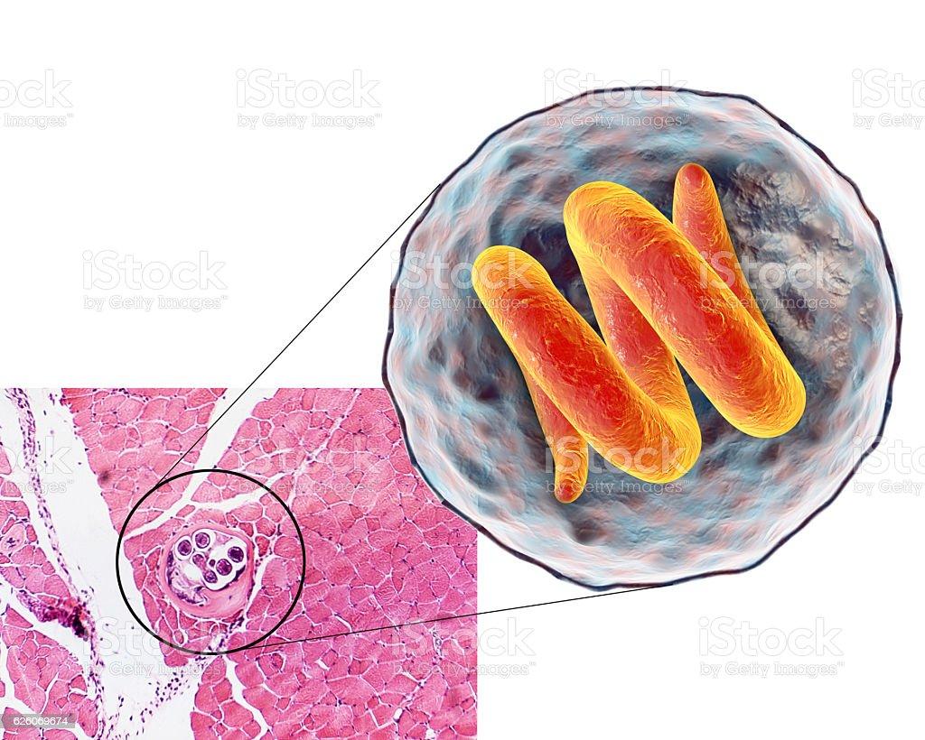 Helminthiasis: tünetek és kezelés gyermekeknél és felnőtteknél, megelőzés Trichinella helminth