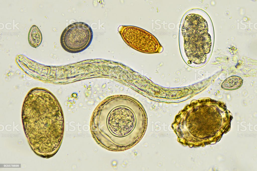 Helminths in stool stock photo