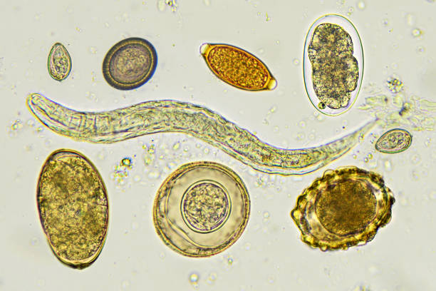 Helminths in stool Mixed of helminths in stool, analyze by microscope nematode worm stock pictures, royalty-free photos & images