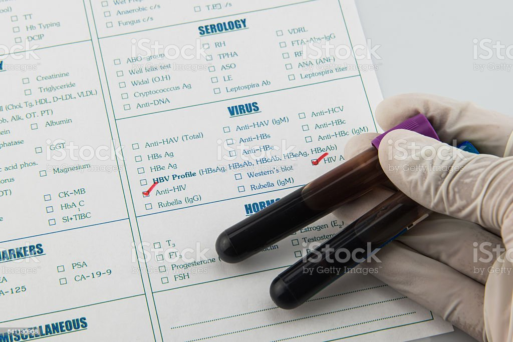 Hematology and immunology blood tube requisition stock photo