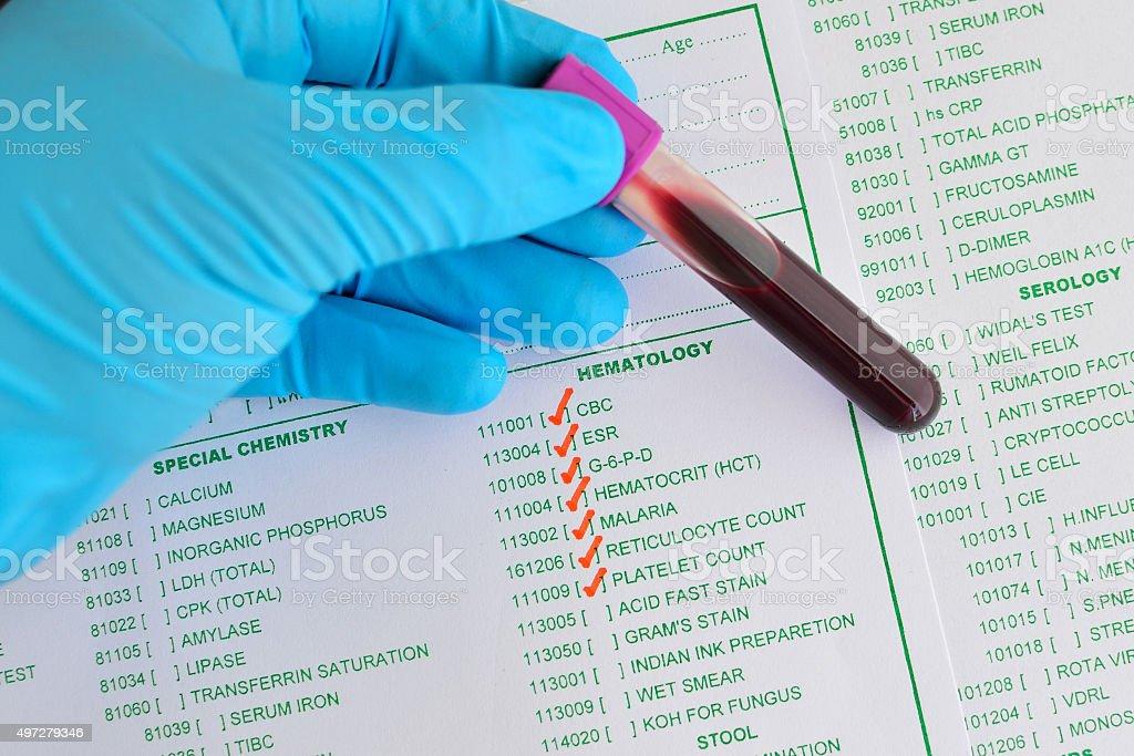 Hematology testing stock photo