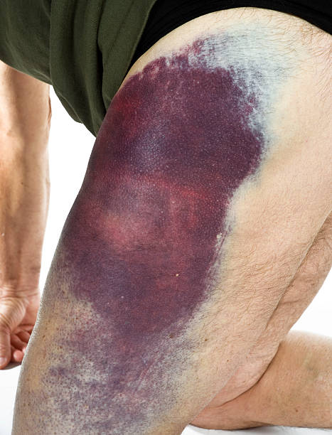 Hematoma from a motorcycle accident stock photo