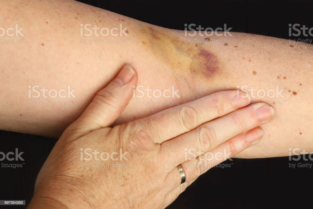 A hematoma on a woman's arm stock photo