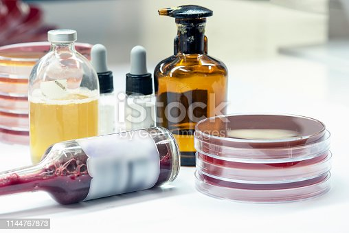 Hemoculture bottle positive; prepare subculture on selective media, Microbiology test in Laboratory.