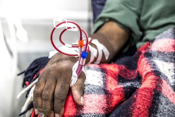 hemodialysis in people on the equipment stock photo