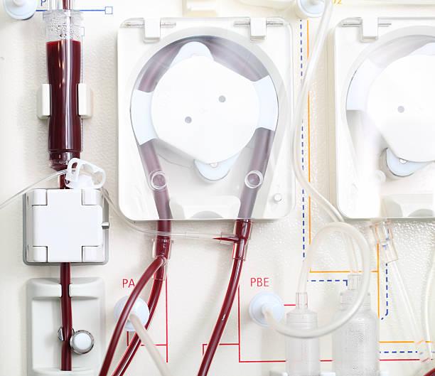 hemodialysis machine at work. Close-up photo. stock photo