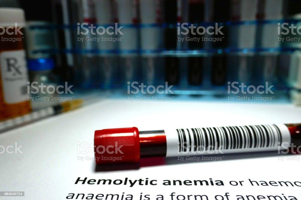Hemolytic anemia - Royalty-free Analyzing Stock Photo